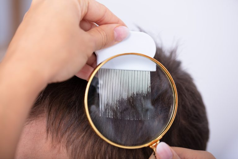 Causes of Itchy Scalp After Lice Treatment