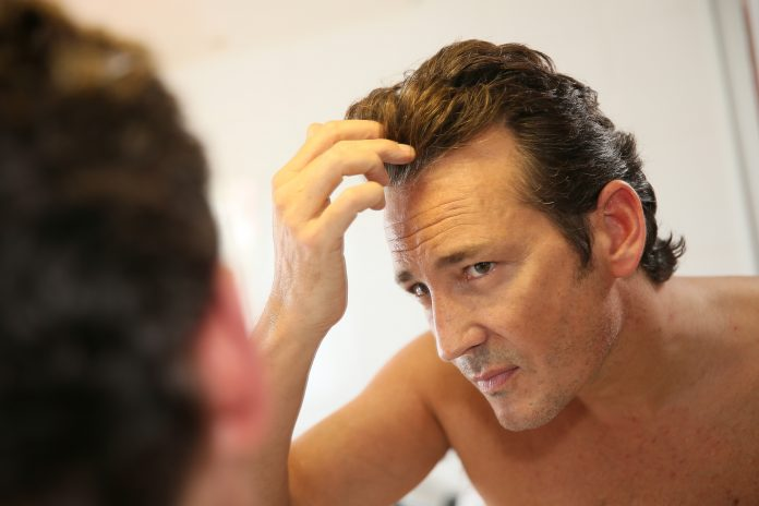 Minoxidil Solution For Hair Loss Treatment