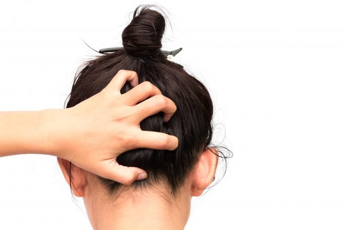 Home Remedies for Dandruff and Oily Hair