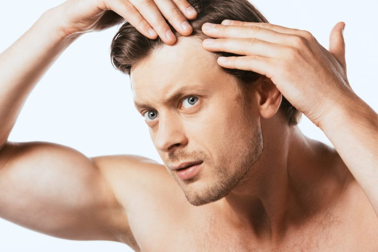 Does Sweat Cause Hair Loss?