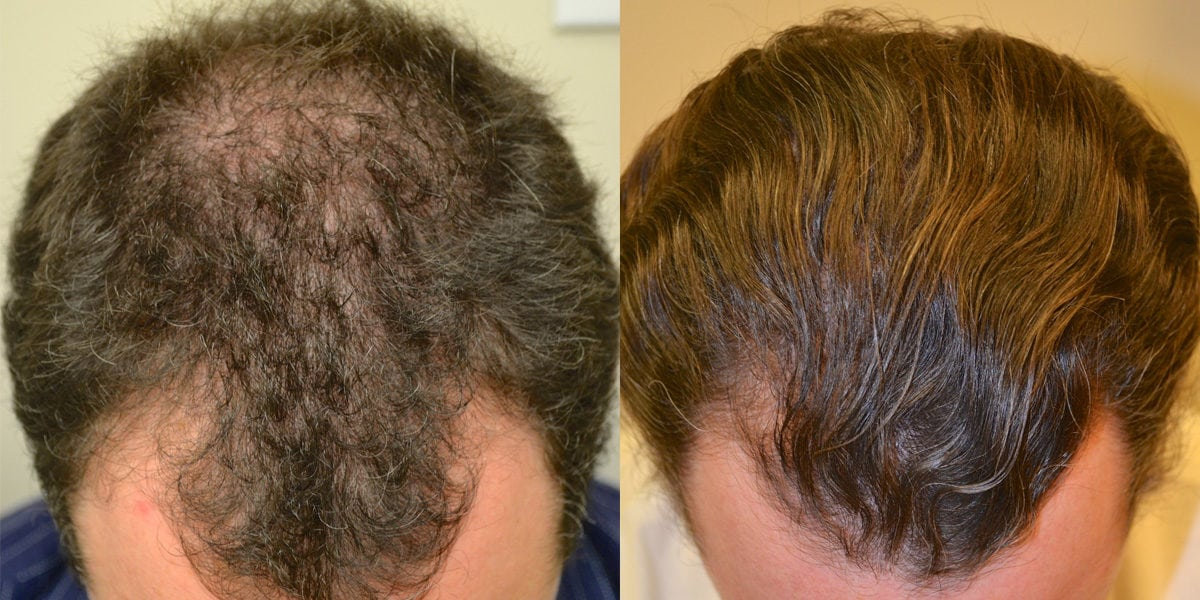 before and after hair loss