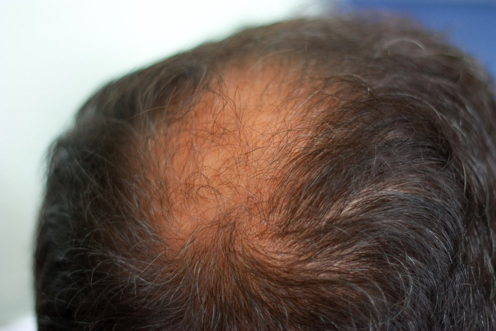 Hair Loss 101: Symptoms, Causes and Cures