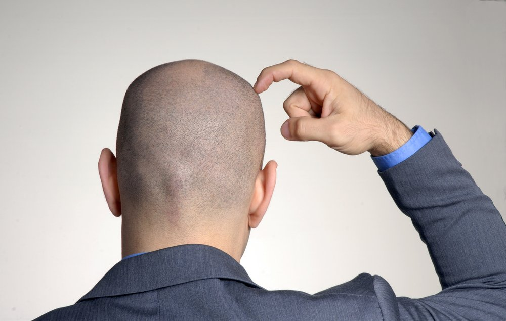 The Big 3: Hair Loss Products Known to Work