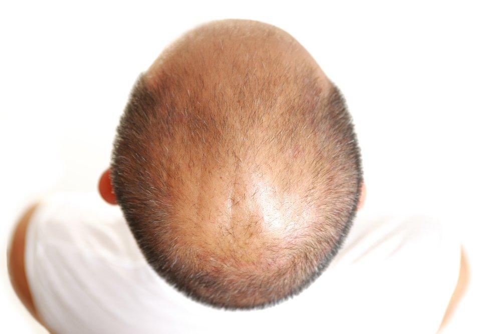 Do Laser Brushes Work on Hair Loss