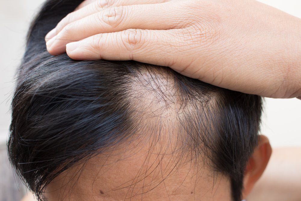 Does High Testosterone Really Cause Hair Loss?
