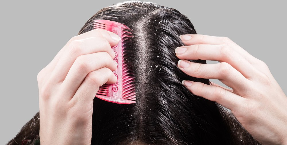 Oily Scalps: Do They Cause Hair Loss?