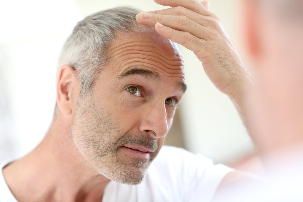 What Are the First Signs of Balding in Men