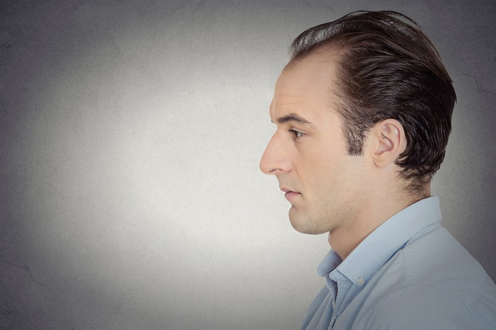 Early Signs of Balding