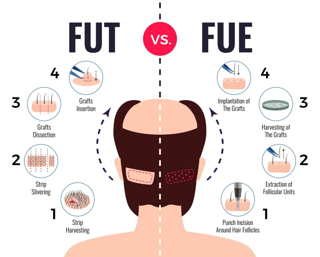 hair transplants turkey fue vs fut