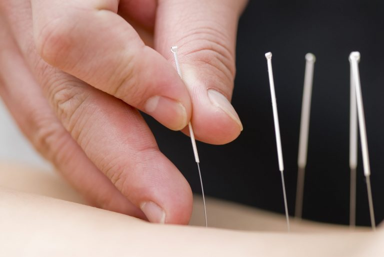 Acupuncture for Hair Growth: Benefits and Results