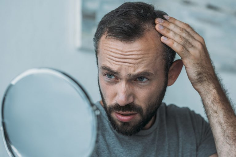 10 Common Myths About Hair Loss