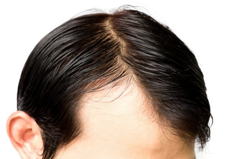 Balding Versus Mature Hairline: What's the Difference?