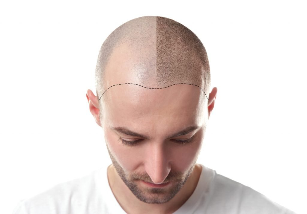Before and after of Folexin for Hair Loss