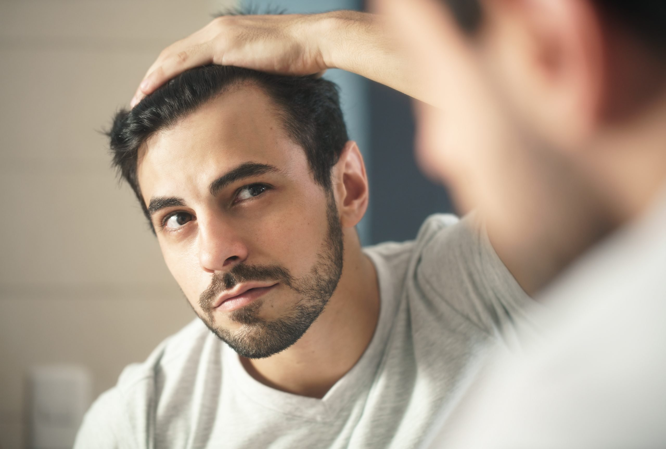 How To Deal With A Receding Hairline 2021 - Hair Loss Geeks