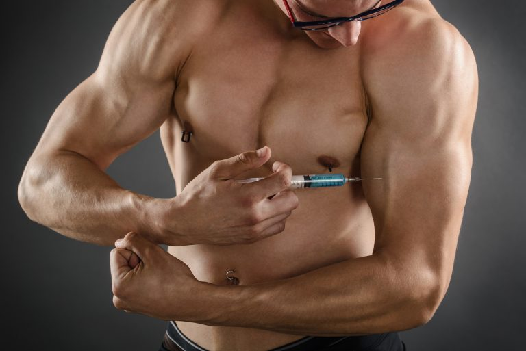 Can Steroids Cause Hair Loss?