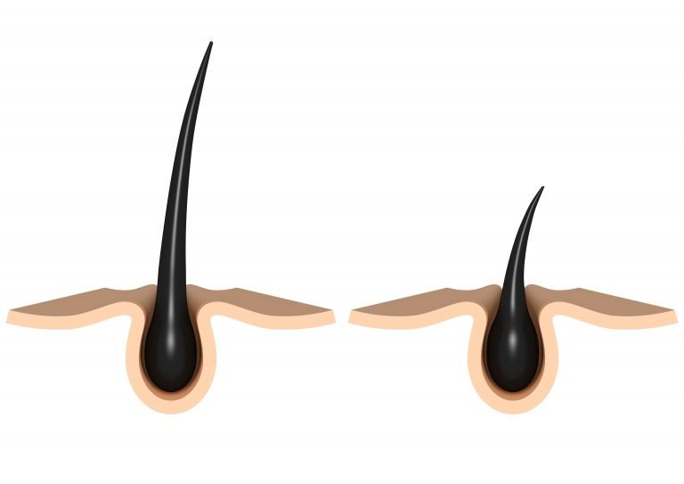 How Do You Know If Your Hair Follicles Are Dead?