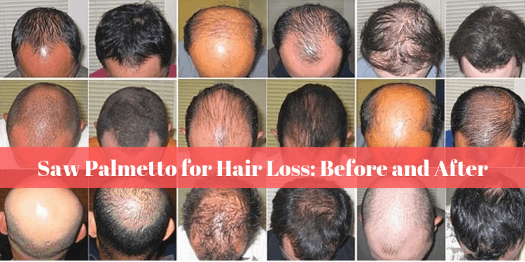 Saw Palmetto for Hair Loss Before and After
