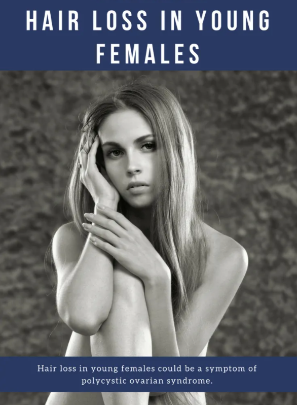 Primary Causes of Hair Loss in Females