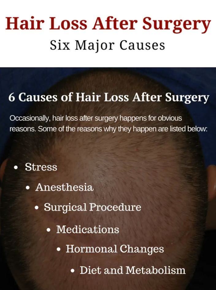 Causes and Prevention of Hair Loss