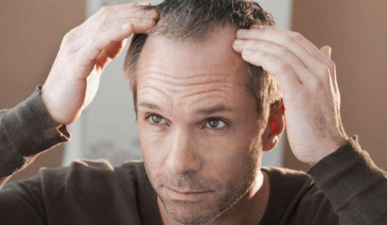 receding hairline for men