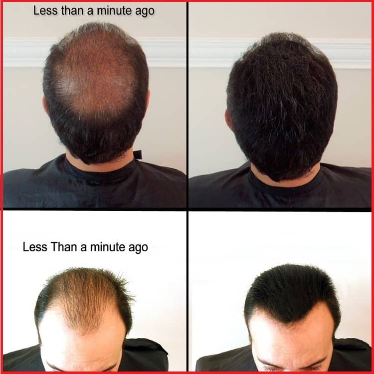 hair loss concealer results