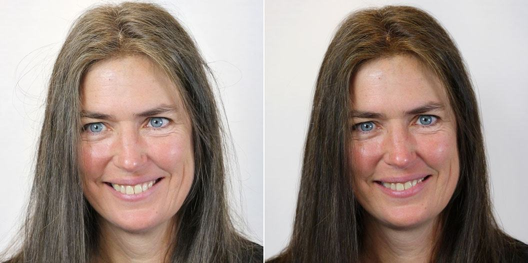 hairprin results before and after